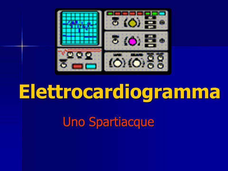 Elettrocardiogramma Uno Spartiacque