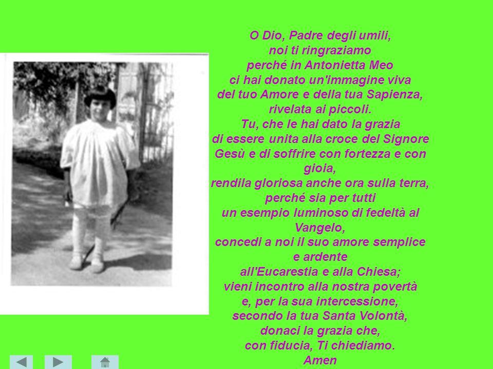 O Dio, Padre degli umili, noi ti ringraziamo perché in Antonietta Meo ci hai donato un'immagine viva del tuo Amore e della tua Sapienza, rivelata ai p