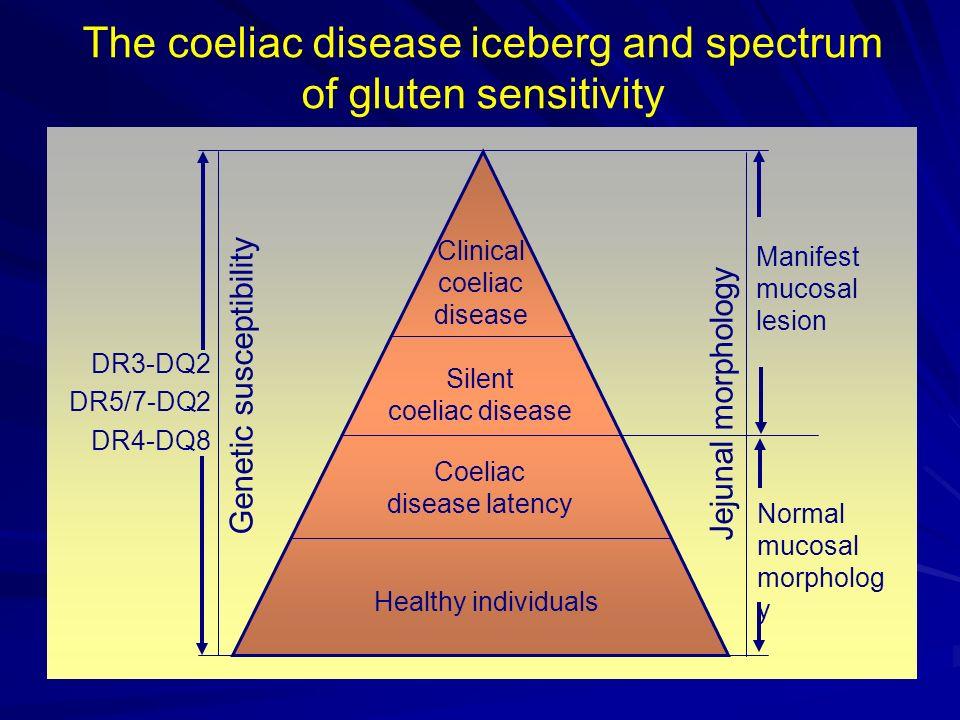 Malattia celiaca decorso remissione dopo dieta aglutinata remissione dopo dieta aglutinata non risposta per non risposta per a) resistenza b) altre intolleranze alimentari c) colon irritabile comparsa di neoplasia mortalità