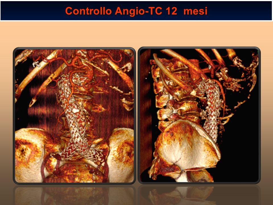 Controllo Angio-TC 12 mesi