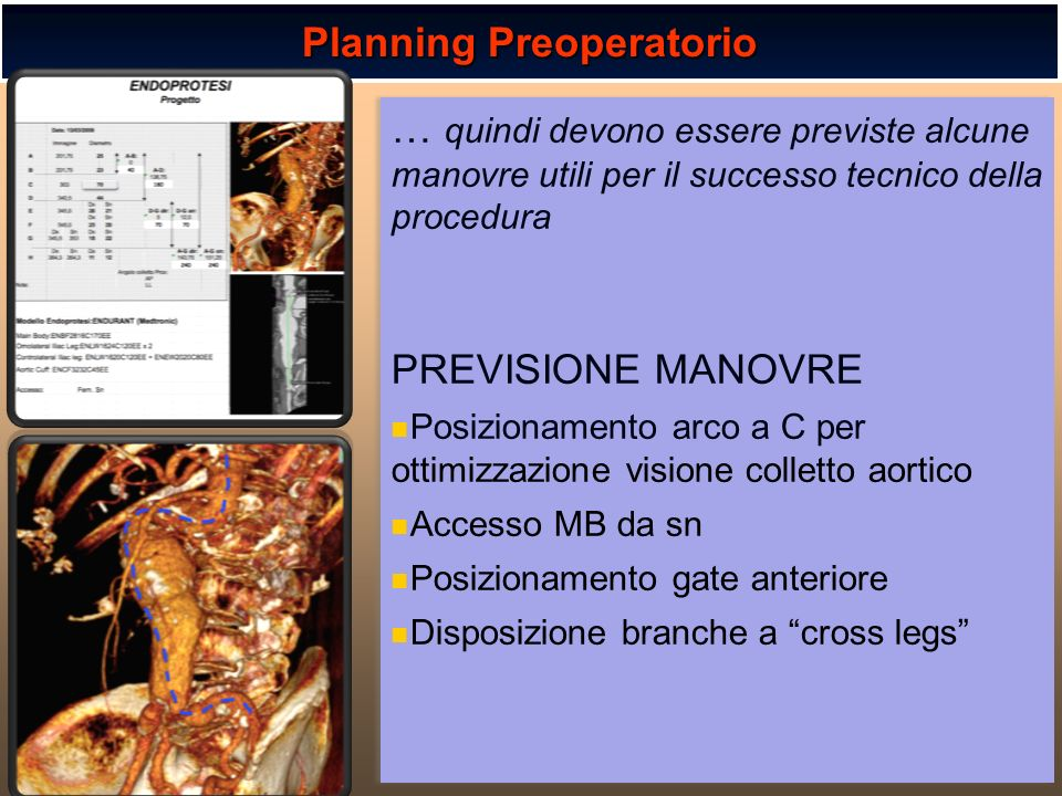 Planning Preoperatorio … quindi devono essere previste alcune manovre utili per il successo tecnico della procedura PREVISIONE MANOVRE Posizionamento