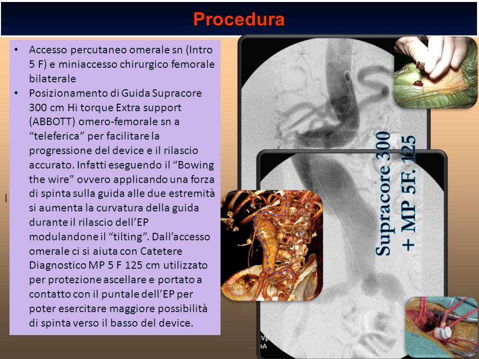 l l Procedura Accesso percutaneo omerale sn (Intro 5 F) e miniaccesso chirurgico femorale bilaterale Posizionamento di Guida Supracore 300 cm Hi torqu