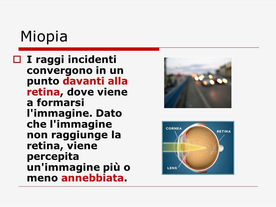 Miopia I raggi incidenti convergono in un punto davanti alla retina, dove viene a formarsi l'immagine. Dato che l'immagine non raggiunge la retina, vi