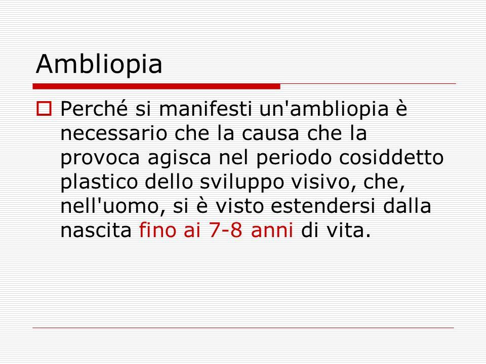 Ambliopia Perché si manifesti un'ambliopia è necessario che la causa che la provoca agisca nel periodo cosiddetto plastico dello sviluppo visivo, che,