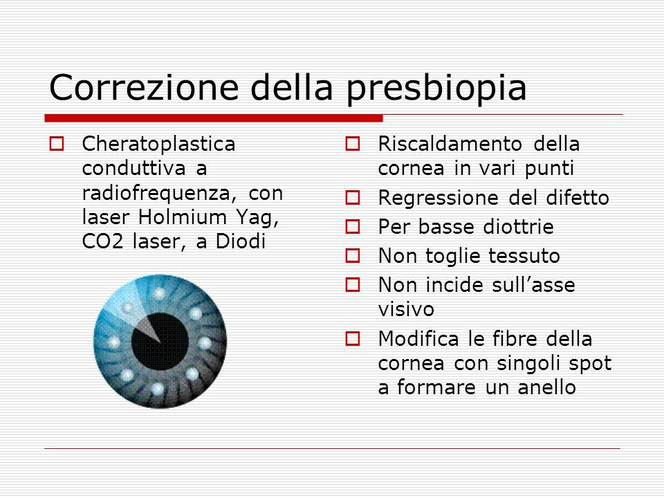 Correzione della presbiopia Cheratoplastica conduttiva a radiofrequenza, con laser Holmium Yag, CO2 laser, a Diodi Riscaldamento della cornea in vari