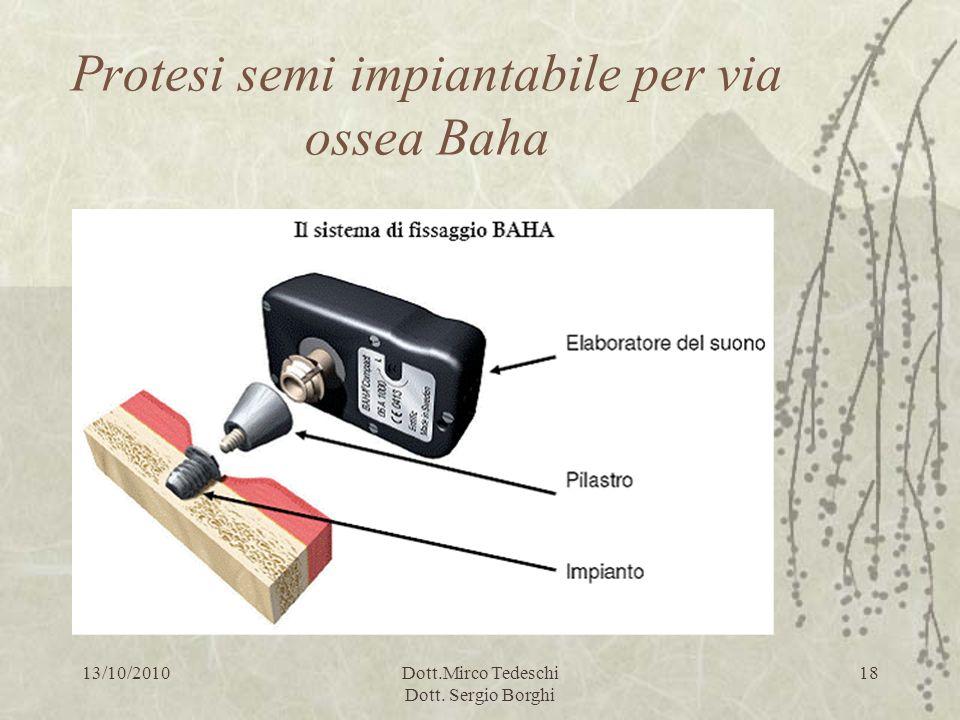 13/10/2010Dott.Mirco Tedeschi Dott. Sergio Borghi 18 Protesi semi impiantabile per via ossea Baha