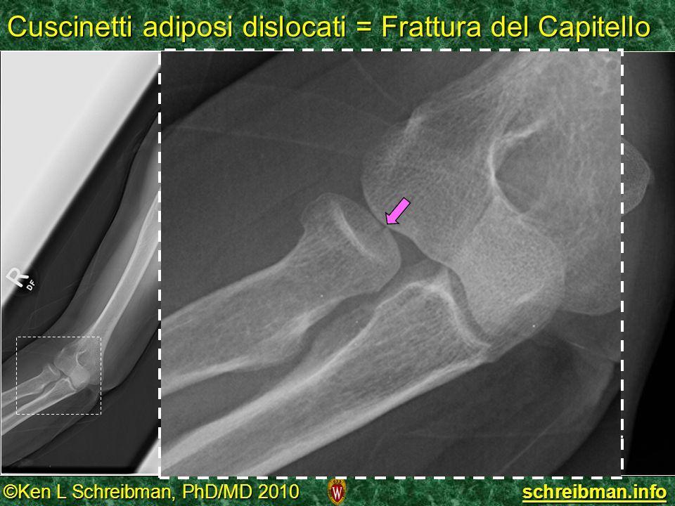©Ken L Schreibman, PhD/MD 2010 schreibman.info Cuscinetti adiposi dislocati = Frattura del Capitello EXTROT