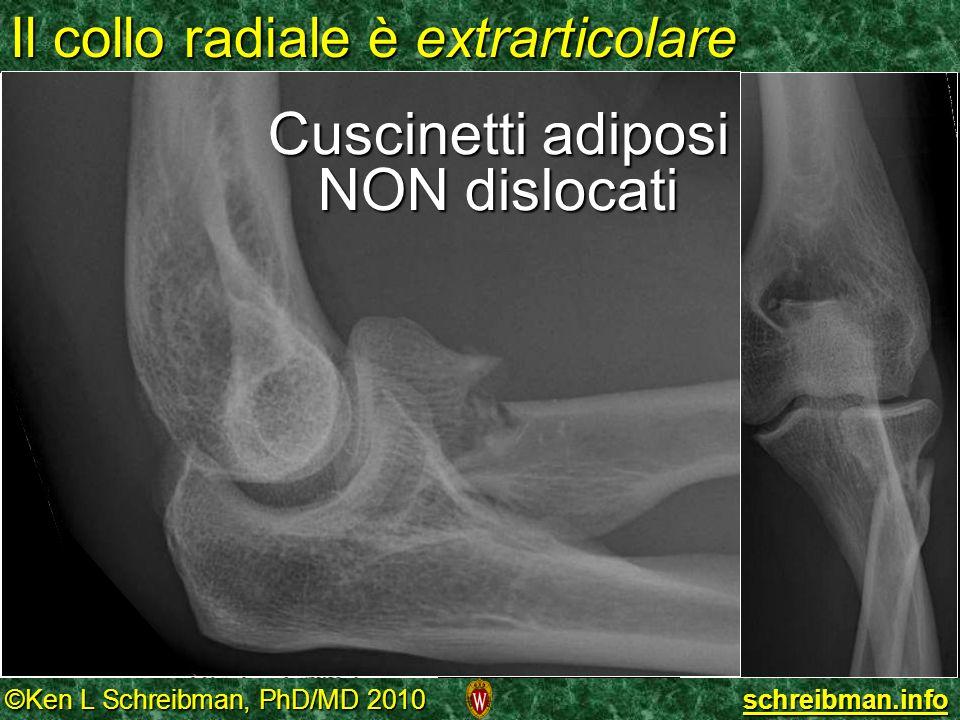 ©Ken L Schreibman, PhD/MD 2010 schreibman.info Il collo radiale è extrarticolare Resnick fig22-15 Cuscinetti adiposi NON dislocati