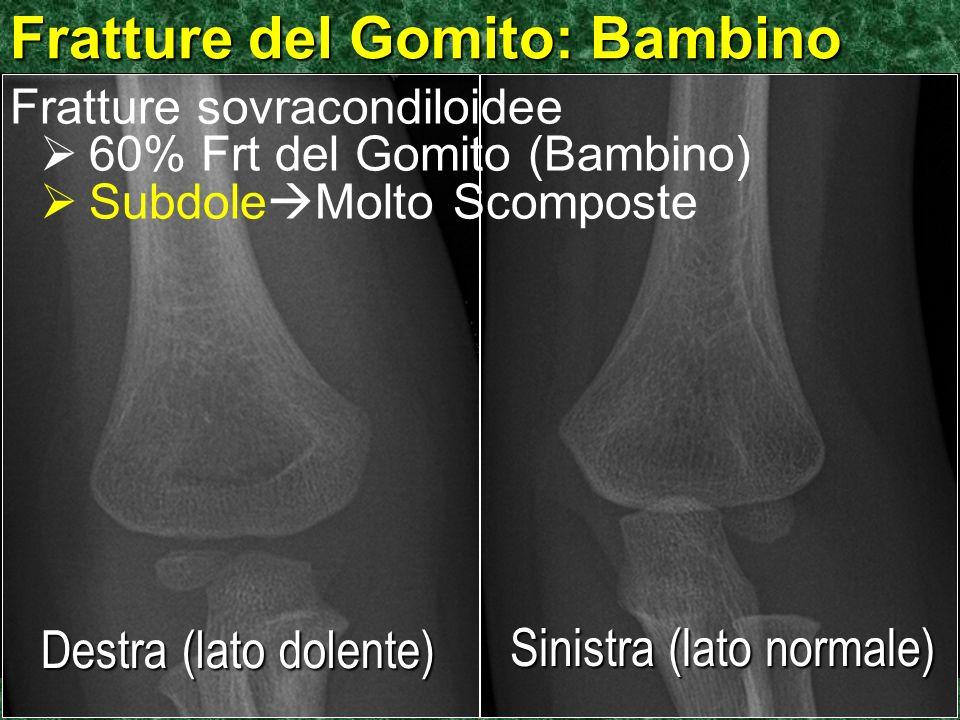 ©Ken L Schreibman, PhD/MD 2010 schreibman.info Fratture del Gomito: Bambino Destra (lato dolente) Sinistra (lato normale) Fratture sovracondiloidee 60