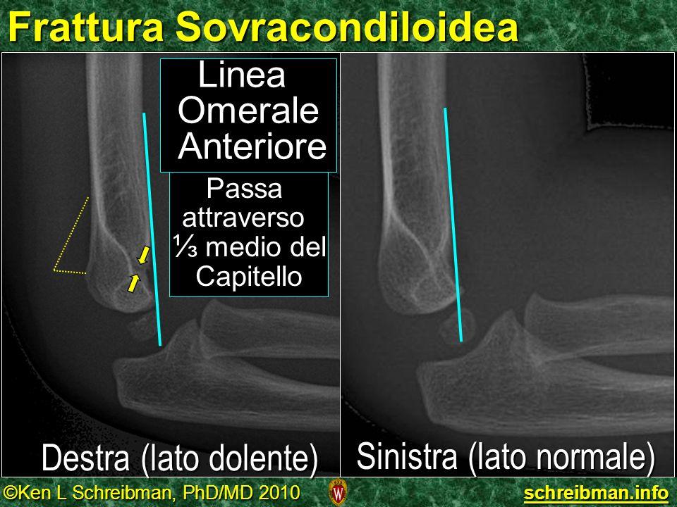 ©Ken L Schreibman, PhD/MD 2010 schreibman.info Frattura Sovracondiloidea Destra (lato dolente) Sinistra (lato normale) Linea Omerale Anteriore Passa a
