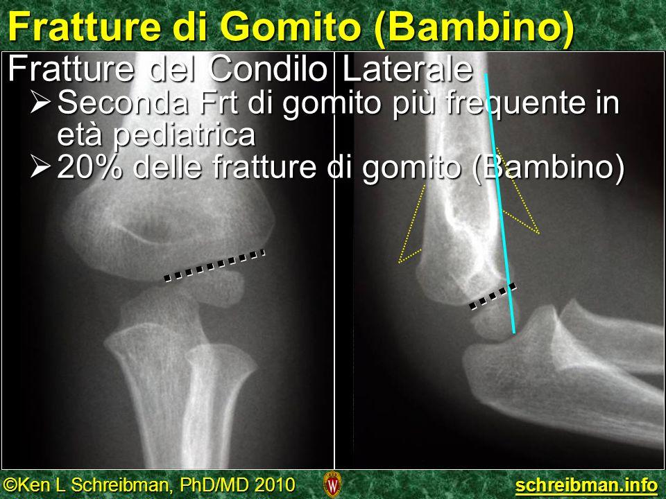 ©Ken L Schreibman, PhD/MD 2010 schreibman.info Fratture di Gomito (Bambino) Fratture del Condilo Laterale Seconda Frt di gomito più frequente in età p