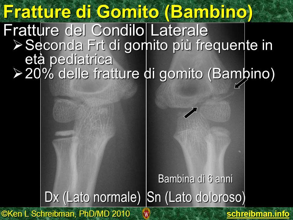 ©Ken L Schreibman, PhD/MD 2010 schreibman.info Bambina di 6 anni Fratture di Gomito (Bambino) Fratture del Condilo Laterale Seconda Frt di gomito più