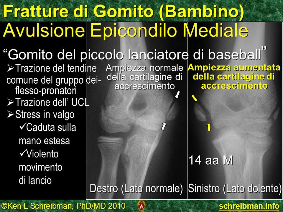 ©Ken L Schreibman, PhD/MD 2010 schreibman.info Fratture di Gomito (Bambino) 14 aa M Sinistro (Lato dolente) Destro (Lato normale) Ampiezza normale del