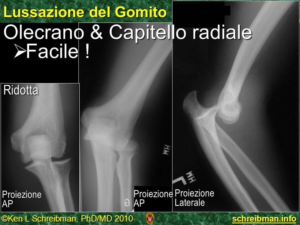 ©Ken L Schreibman, PhD/MD 2010 schreibman.info Lussazione del Gomito ProiezioneLaterale Olecrano & Capitello radiale Facile ! Facile ! Ridotta Proiezi