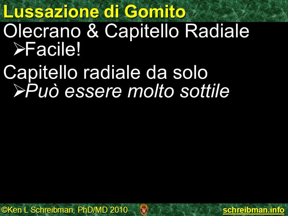©Ken L Schreibman, PhD/MD 2010 schreibman.info Lussazione di Gomito Olecrano & Capitello Radiale Facile! Facile! Capitello radiale da solo Può essere