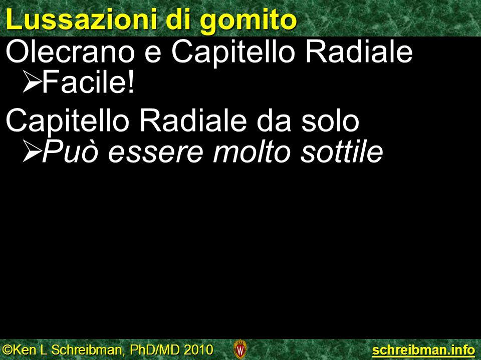 ©Ken L Schreibman, PhD/MD 2010 schreibman.info Lussazioni di gomito Olecrano e Capitello Radiale Facile! Facile! Capitello Radiale da solo Può essere