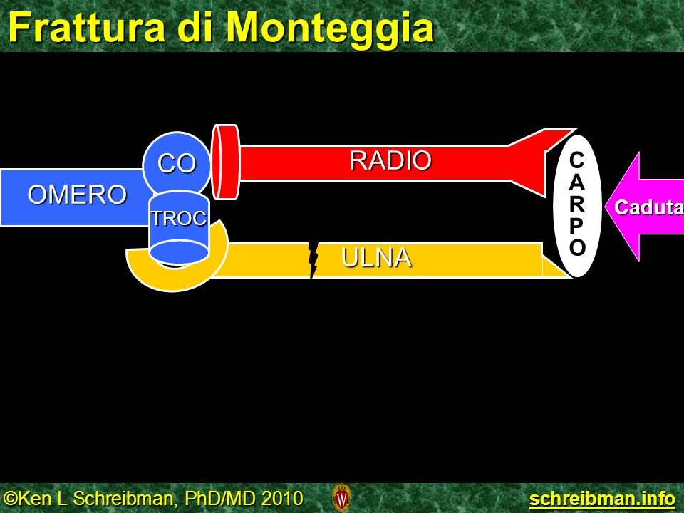 ©Ken L Schreibman, PhD/MD 2010 schreibman.info Frattura di Monteggia ULNA OMERO CO TROC CARPOCARPO Caduta RADIO