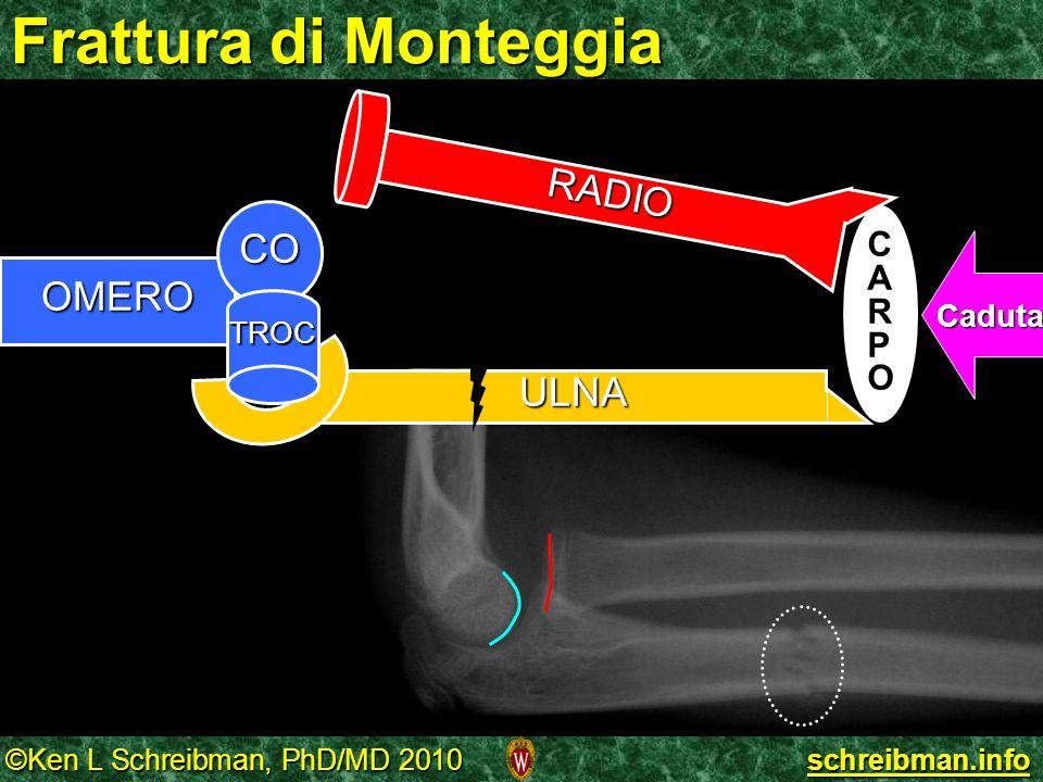 ©Ken L Schreibman, PhD/MD 2010 schreibman.info Frattura di Monteggia OMERO ULNA CO TROC RADIO CARPOCARPO Caduta