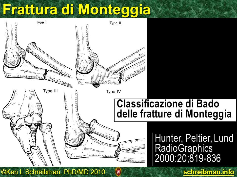 ©Ken L Schreibman, PhD/MD 2010 schreibman.info Frattura di Monteggia Classificazione di Bado delle fratture di Monteggia Hunter, Peltier, Lund RadioGr