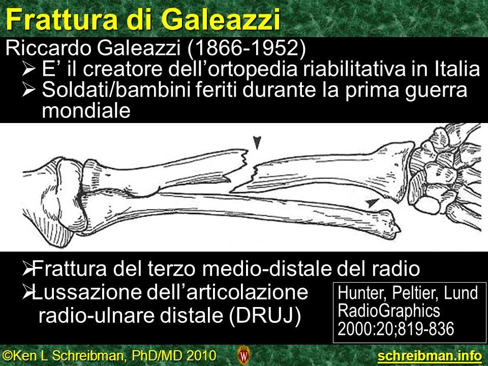 ©Ken L Schreibman, PhD/MD 2010 schreibman.info Riccardo Galeazzi (1866-1952) E il creatore dellortopedia riabilitativa in Italia E il creatore dellort