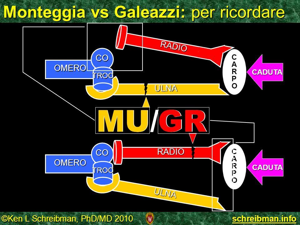 ©Ken L Schreibman, PhD/MD 2010 schreibman.info Monteggia vs Galeazzi: per ricordare OMERO ULNA CO TROC CARPOCARPO CADUTA RADIO ULNA OMERO CO TROC CARP