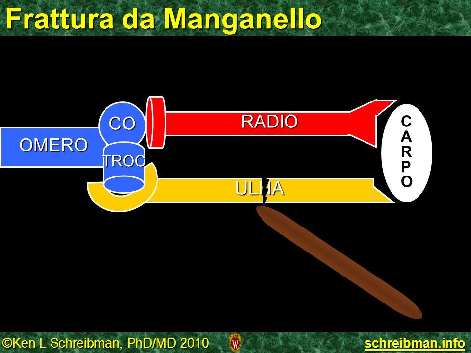 ©Ken L Schreibman, PhD/MD 2010 schreibman.info Frattura da Manganello ULNA OMERO CO TROC CARPOCARPO RADIO