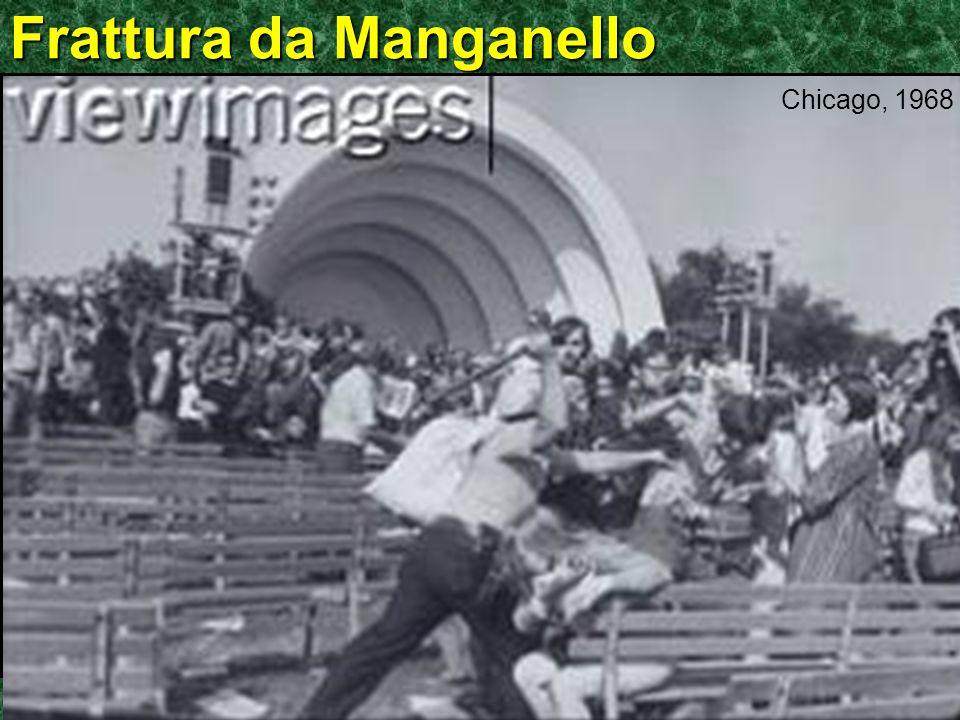 ©Ken L Schreibman, PhD/MD 2010 schreibman.info Frattura da Manganello Chicago, 1968