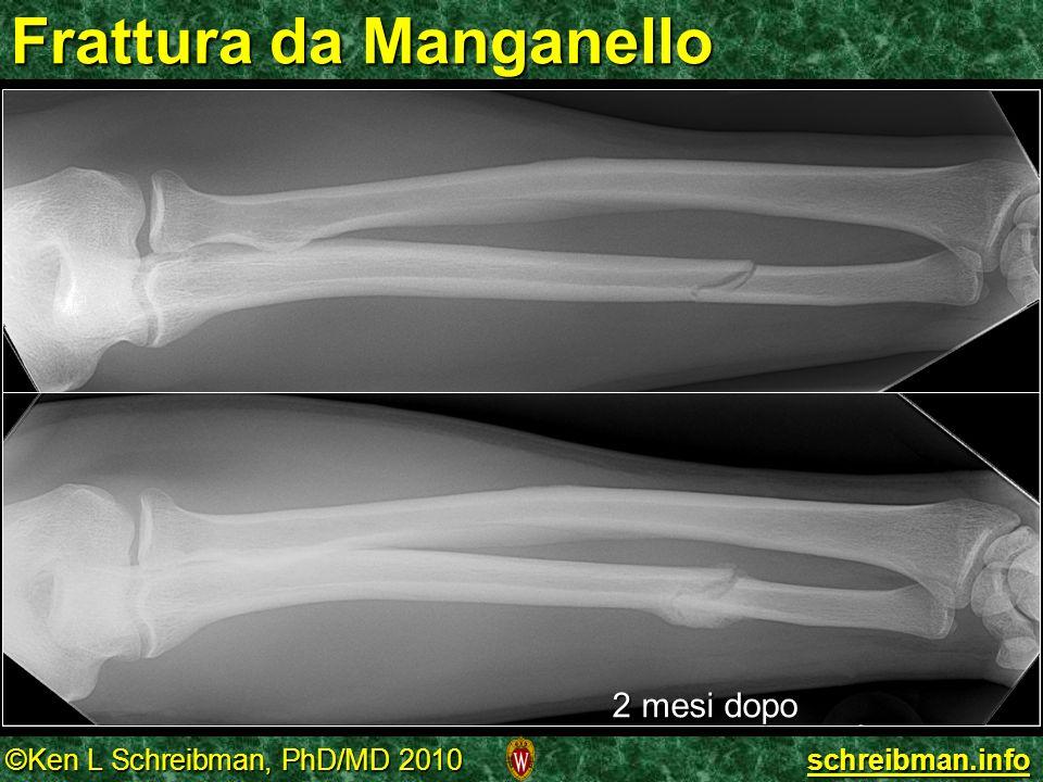 ©Ken L Schreibman, PhD/MD 2010 schreibman.info Frattura da Manganello 2 mesi dopo