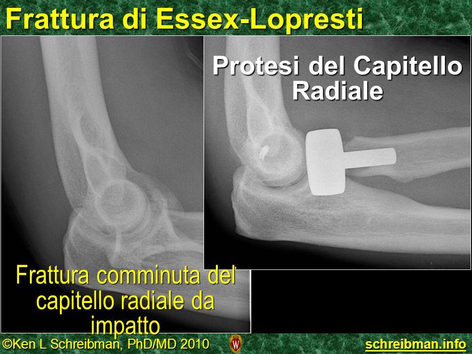 ©Ken L Schreibman, PhD/MD 2010 schreibman.info Frattura di Essex-Lopresti Protesi del Capitello Radiale Frattura comminuta del capitello radiale da im