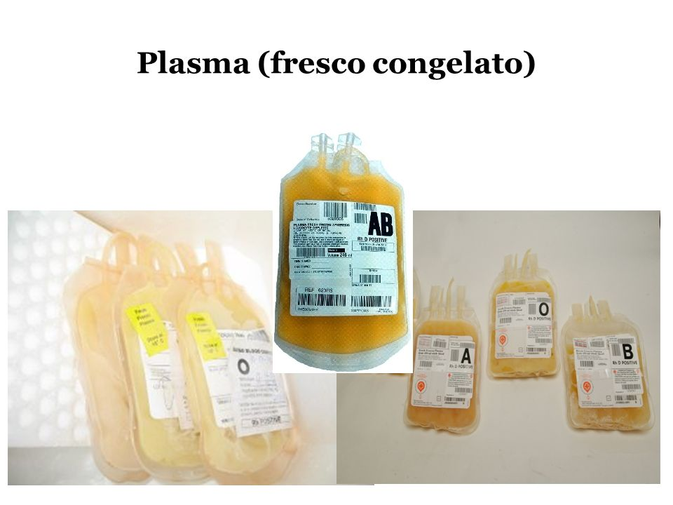 Plasma (fresco congelato)