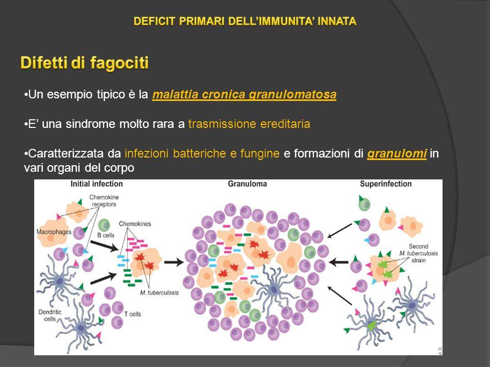 Un esempio tipico è la malattia cronica granulomatosa E una sindrome molto rara a trasmissione ereditaria Caratterizzata da infezioni batteriche e fungine e formazioni di granulomi in vari organi del corpo