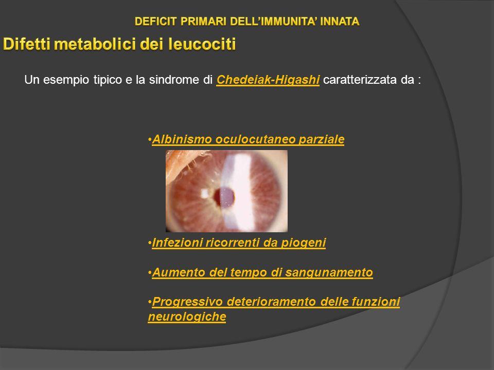 Un esempio tipico e la sindrome di Chedeiak-Higashi caratterizzata da : Albinismo oculocutaneo parziale Infezioni ricorrenti da piogeni Aumento del tempo di sangunamento Progressivo deterioramento delle funzioni neurologiche