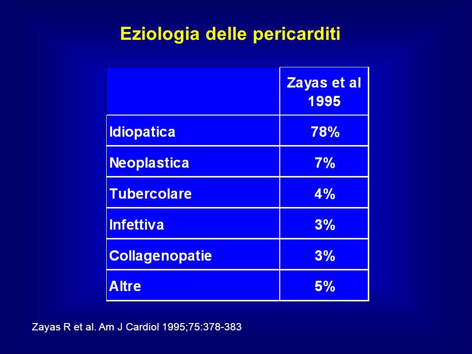 Eziologia delle pericarditi Zayas R et al. Am J Cardiol 1995;75:378-383