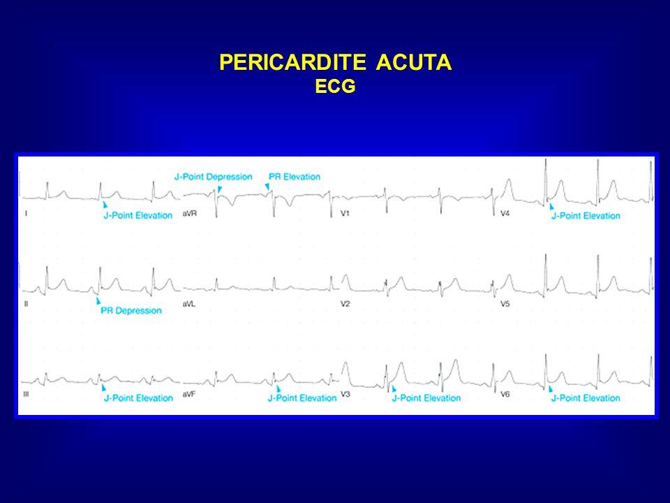 PERICARDITE ACUTA ECG