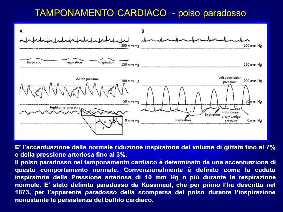 TAMPONAMENTO CARDIACO - polso paradosso E laccentuazione della normale riduzione inspiratoria del volume di gittata fino al 7% e della pressione arter