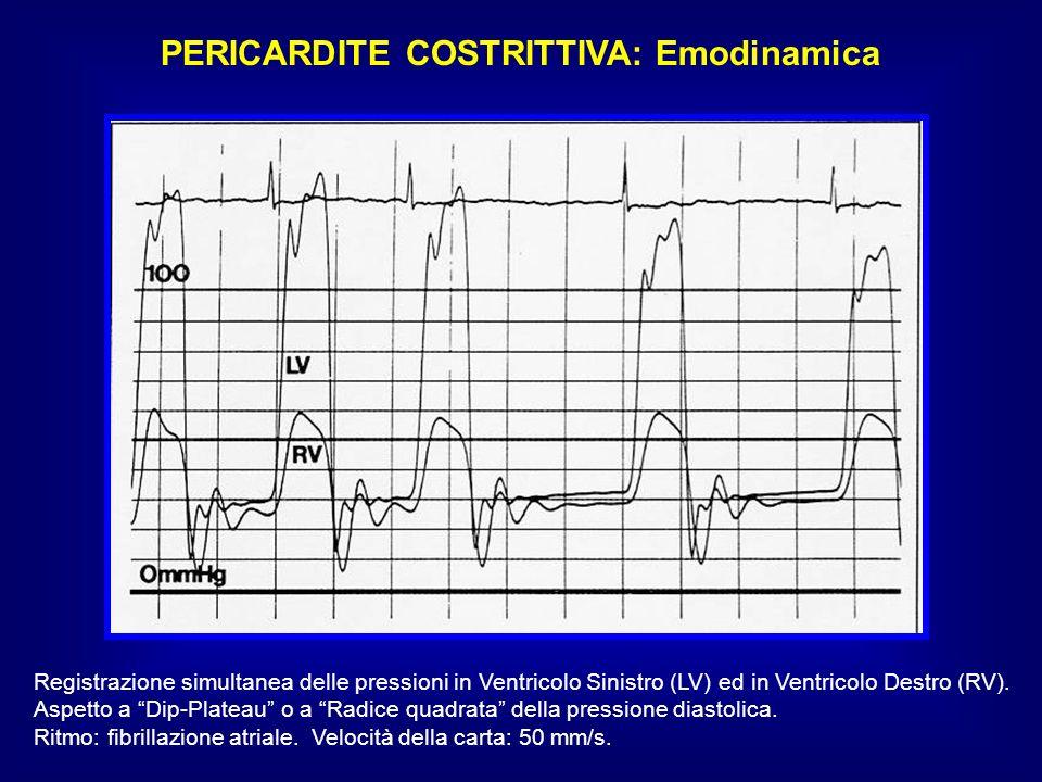 PERICARDITE COSTRITTIVA: Emodinamica Registrazione simultanea delle pressioni in Ventricolo Sinistro (LV) ed in Ventricolo Destro (RV). Aspetto a Dip-