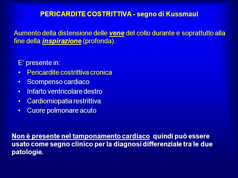 PERICARDITE COSTRITTIVA - segno di Kussmaul E presente in: Pericardite costrittiva cronica Scompenso cardiaco Infarto ventricolare destro Cardiomiopat
