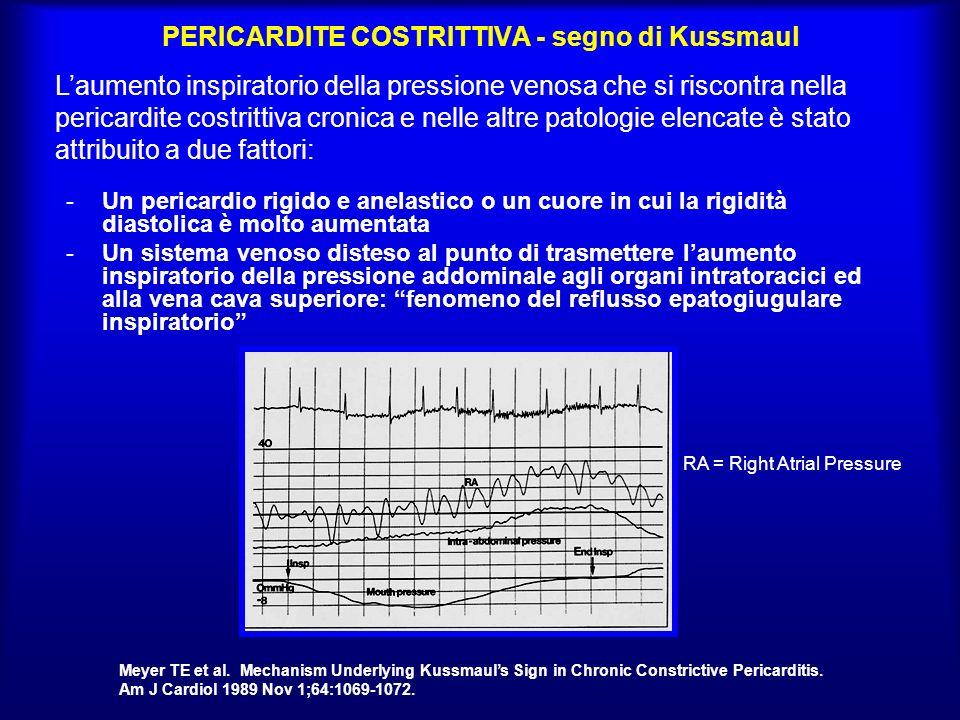 PERICARDITE COSTRITTIVA - segno di Kussmaul -Un pericardio rigido e anelastico o un cuore in cui la rigidità diastolica è molto aumentata -Un sistema