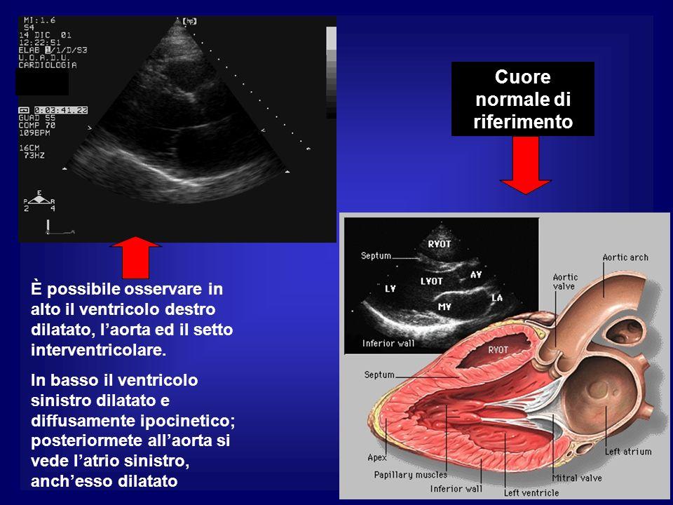 È possibile osservare in alto il ventricolo destro dilatato, laorta ed il setto interventricolare. In basso il ventricolo sinistro dilatato e diffusam