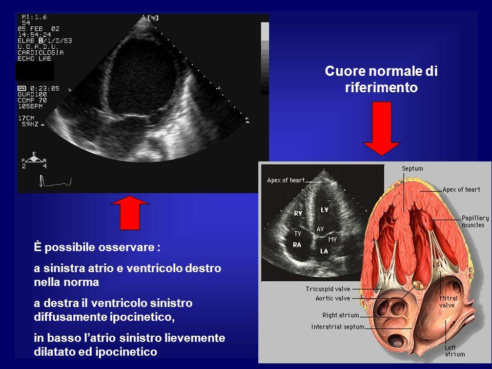 È possibile osservare : a sinistra atrio e ventricolo destro nella norma a destra il ventricolo sinistro diffusamente ipocinetico, in basso latrio sin