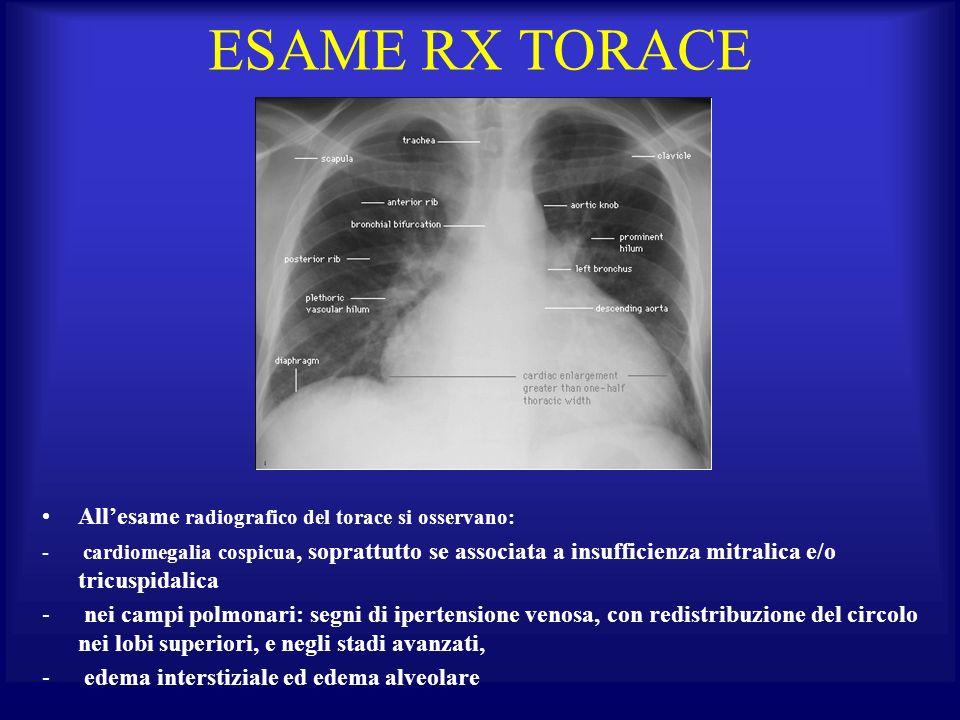 ESAME RX TORACE Allesame radiografico del torace si osservano: - cardiomegalia cospicua, soprattutto se associata a insufficienza mitralica e/o tricus
