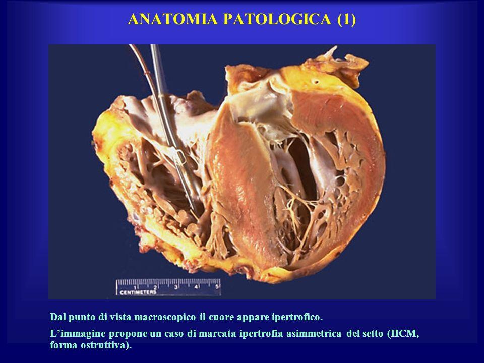 ANATOMIA PATOLOGICA (1) Dal punto di vista macroscopico il cuore appare ipertrofico. Limmagine propone un caso di marcata ipertrofia asimmetrica del s