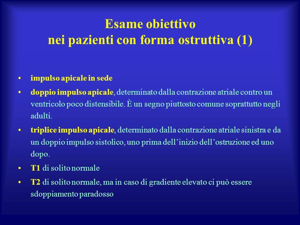 Esame obiettivo nei pazienti con forma ostruttiva (1) impulso apicale in sede doppio impulso apicale, determinato dalla contrazione atriale contro un