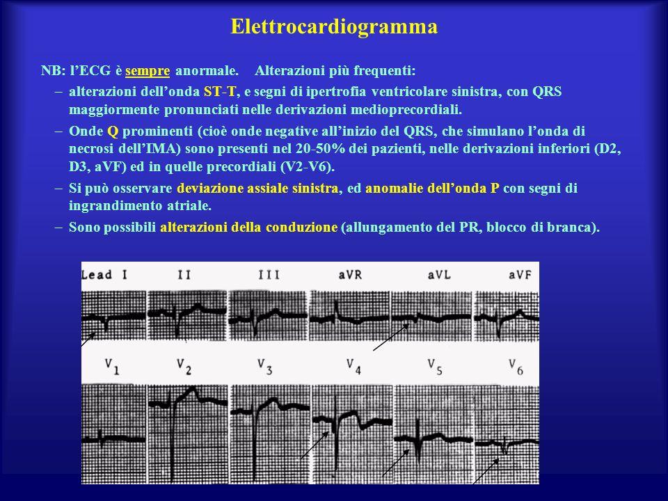 Elettrocardiogramma NB: lECG è sempre anormale. Alterazioni più frequenti: –alterazioni dellonda ST-T, e segni di ipertrofia ventricolare sinistra, co