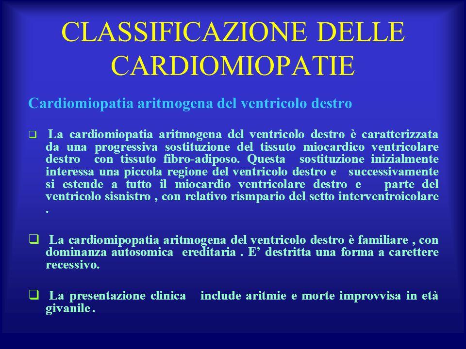 CLASSIFICAZIONE DELLE CARDIOMIOPATIE Cardiomiopatia aritmogena del ventricolo destro La cardiomiopatia aritmogena del ventricolo destro è caratterizza