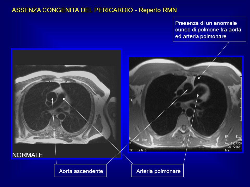 ASSENZA CONGENITA DEL PERICARDIO - Reperto RMN NORMALE Aorta ascendente Arteria polmonare Presenza di un anormale cuneo di polmone tra aorta ed arteri
