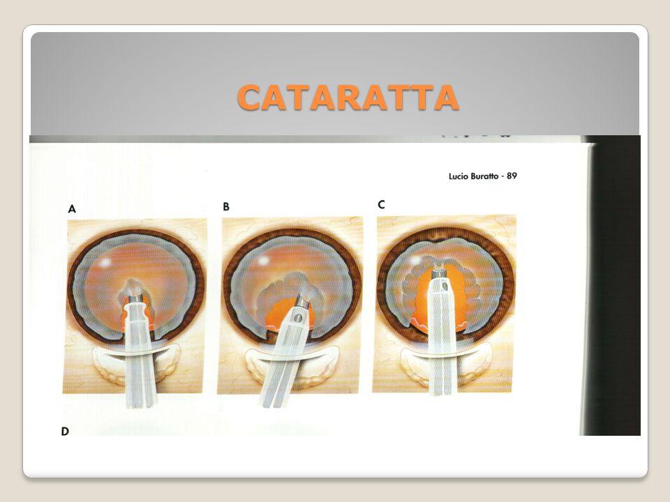 CATARATTA