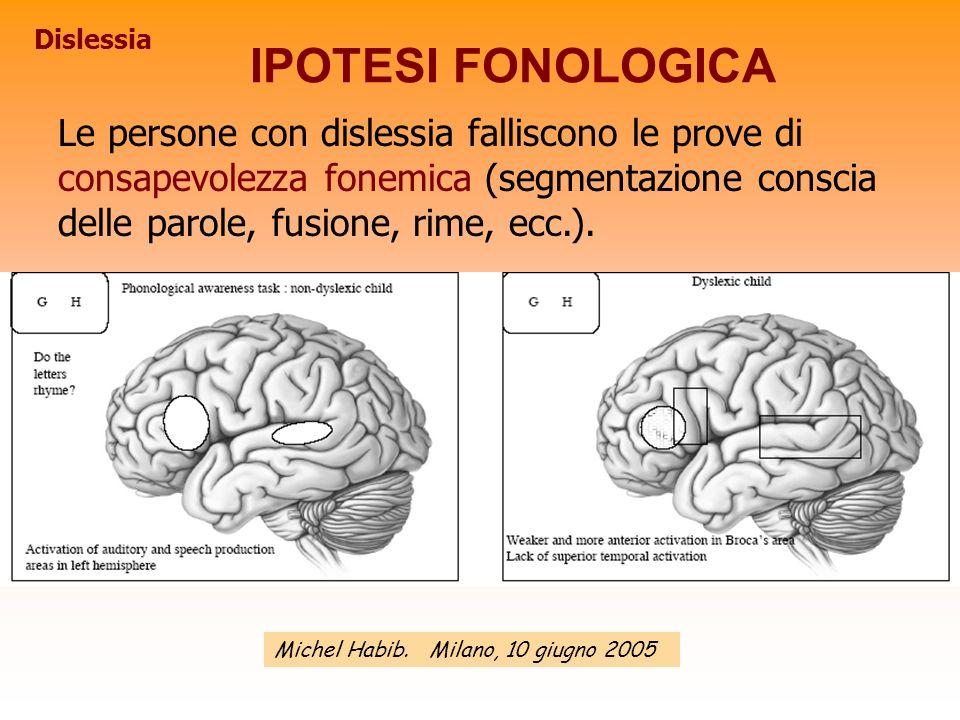 Le persone con dislessia falliscono le prove di consapevolezza fonemica (segmentazione conscia delle parole, fusione, rime, ecc.). Michel Habib. Milan