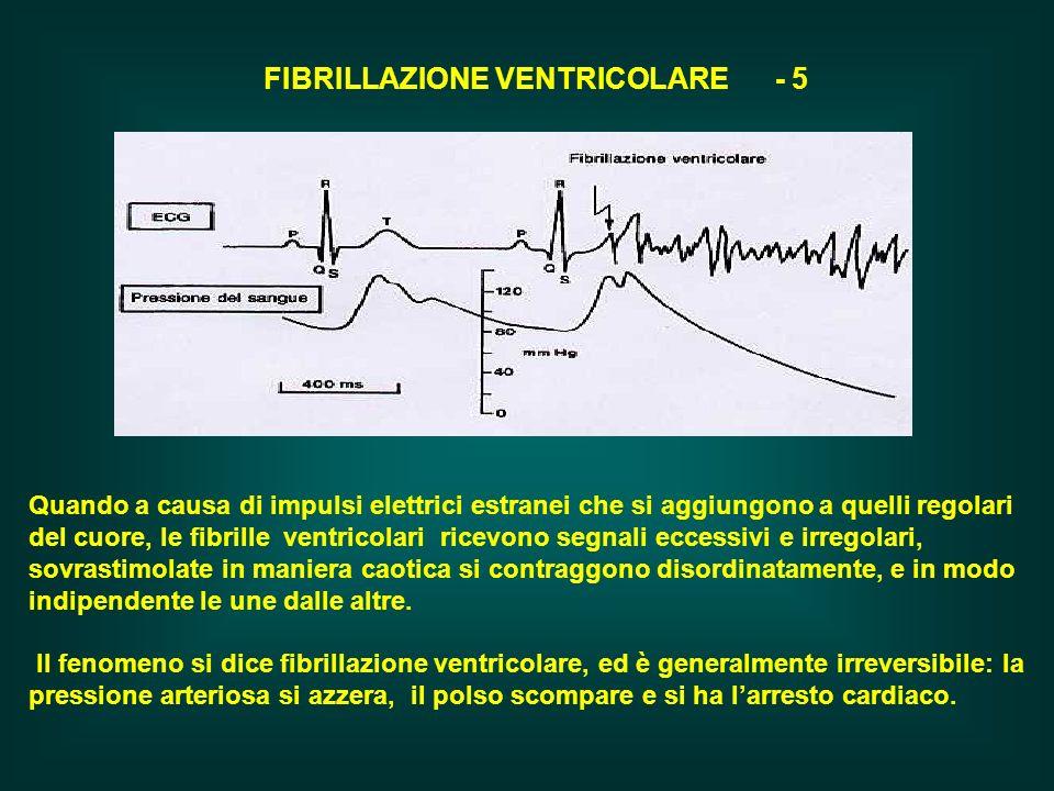 FIBRILLAZIONE VENTRICOLARE - 5 Quando a causa di impulsi elettrici estranei che si aggiungono a quelli regolari del cuore, le fibrille ventricolari ri