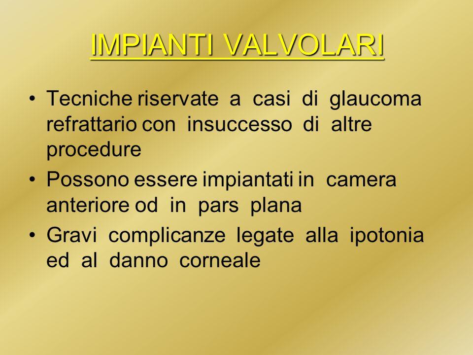 IMPIANTI VALVOLARI Tecniche riservate a casi di glaucoma refrattario con insuccesso di altre procedure Possono essere impiantati in camera anteriore o